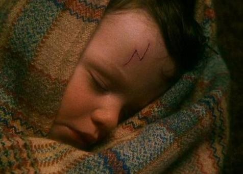 I have a scar on my forehead ever since I was a baby. So did Harry!