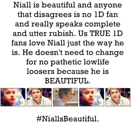Irish Cutie Niall (Enternal Love 4 Niall & I Get Totally Lost In Him Everyx) 100% Real ♥