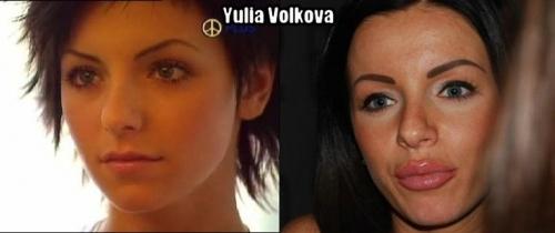 Yulia's plastic surgery