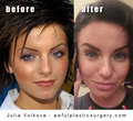 Yulia's plastic surgery - tatu photo