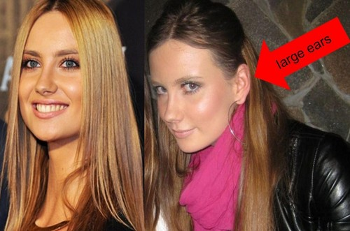 Ester Satorova is not perfect,she has big ears..