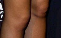 Xisca has ugly knees but still wears miniskirts !!!