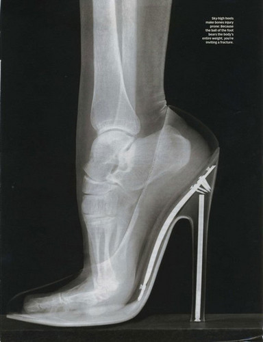X-Ray of Bones while wearing heels