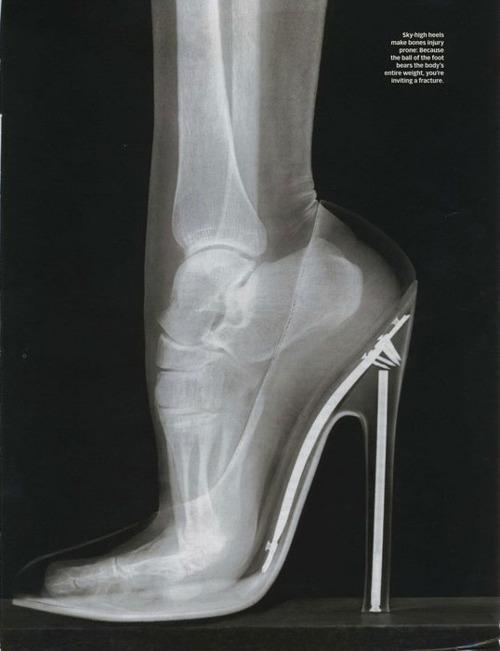 X-Ray of बोन्स while wearing heels
