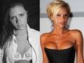 Victoria Beckham before and after plastic surgery - victoria-beckham photo