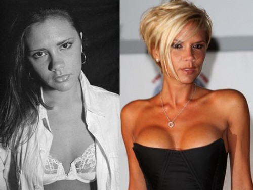 Victoria Beckham before and after plastic surgery