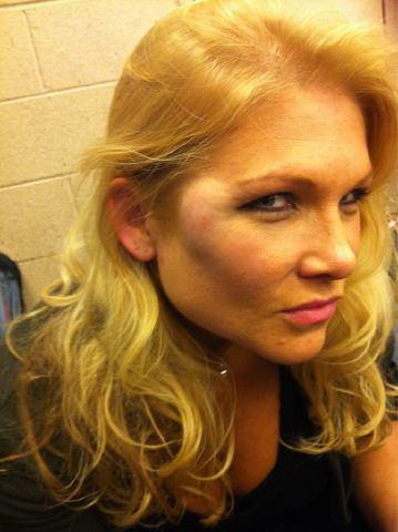 Beth's injury from Raw at the hands of Alicia Fox