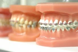 YouTube karatasi la kupamba ukuta entitled Orthodontist: Know The Traits That Comfort Young Patients