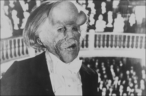 "John Hurt as ""John Merrick"" in ""The Elephant Man"""