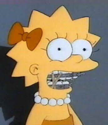 lisa with braces