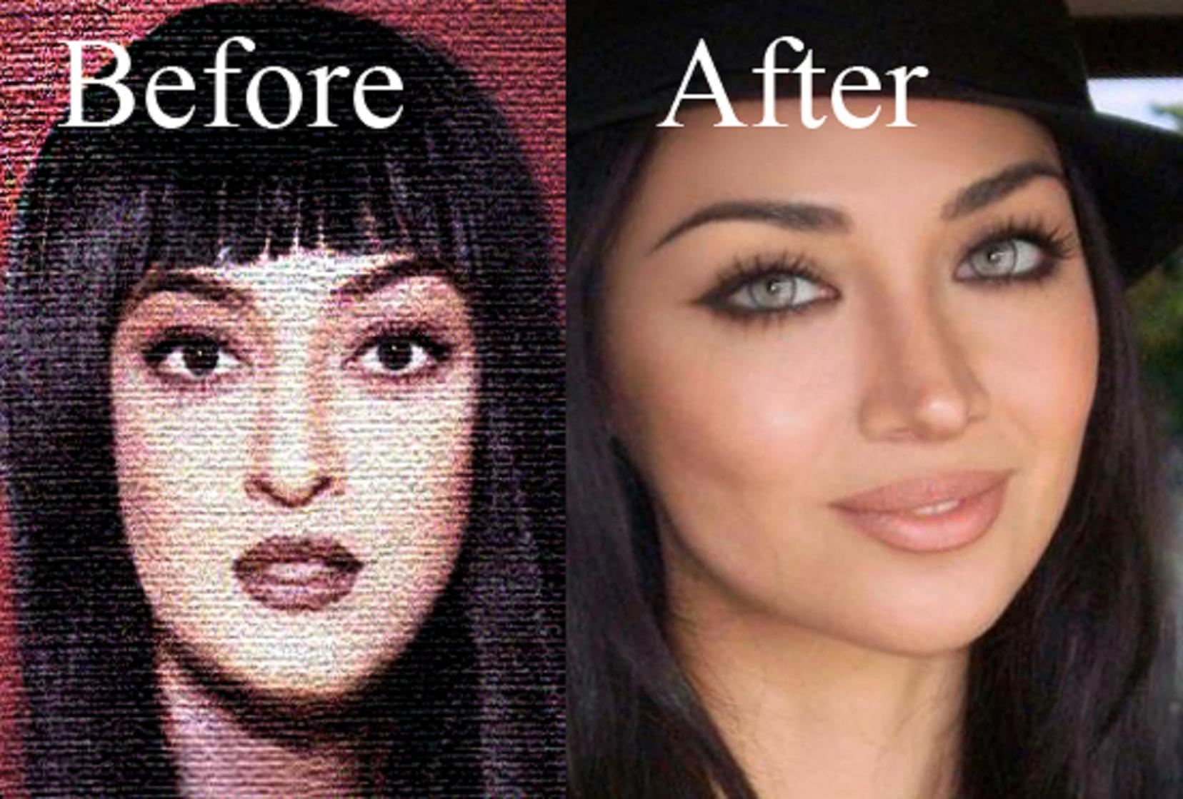 Claudia Lynx Claudia Lynx Before & After Plastic Surgery