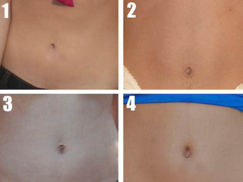 Who Belly is Whose? Guess the Gut!