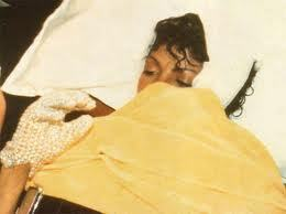 How many calls did Michael Jackson receive when he was in the hospital due to the 1984 Pepsi Commercial accident?